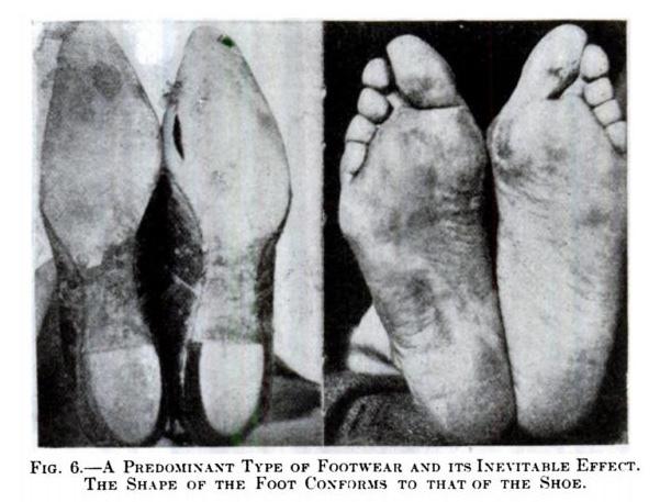 Αποτέλεσμα εικόνας για modern shoes foot shape